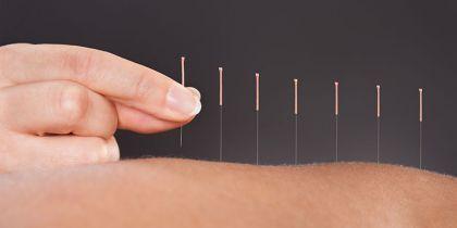 Conheça os benefícios da acupuntura